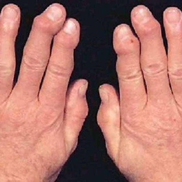 Бруцеллез: симптомы, диагностика, лечение бруцеллеза