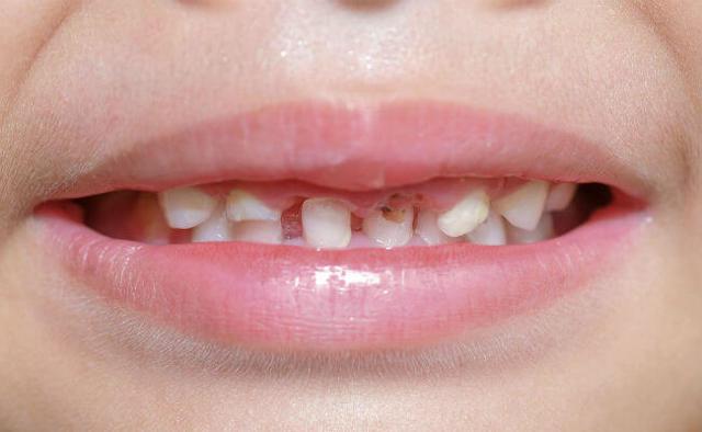 Кариес молочных зубов у детей: лечение, профилактика