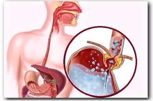 Горечь во рту: причины, лечение. Что делать, если появляется горечь после еды, по утрам