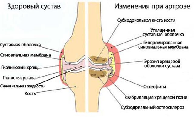 Артроз: причины возникновения, симптомы, лечение