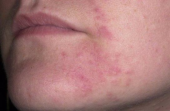 Красные пятна появились на лице чешутся и шелушатся: что делать, причины, фото