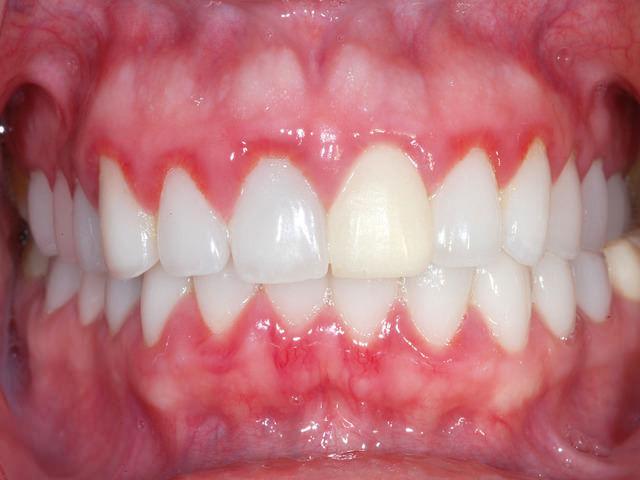 Гипертрофический гингивит: лечение