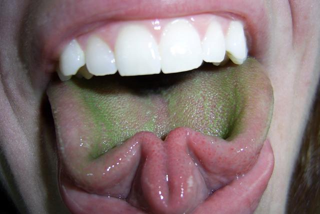Серый налет на языке, причины серого налета на языке