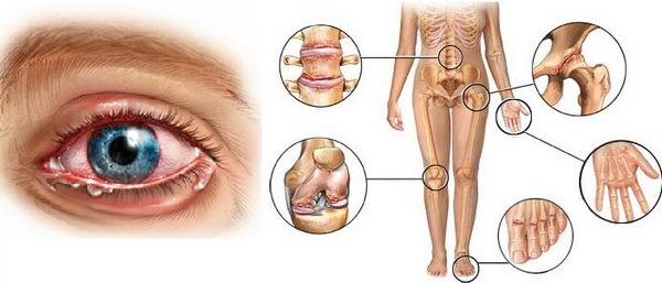 Реактивный артрит: симптомы, лечение реактивного артрита