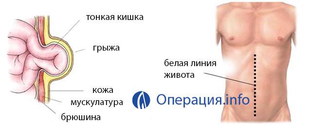 Грыжа белой линии живота: лечение, операция