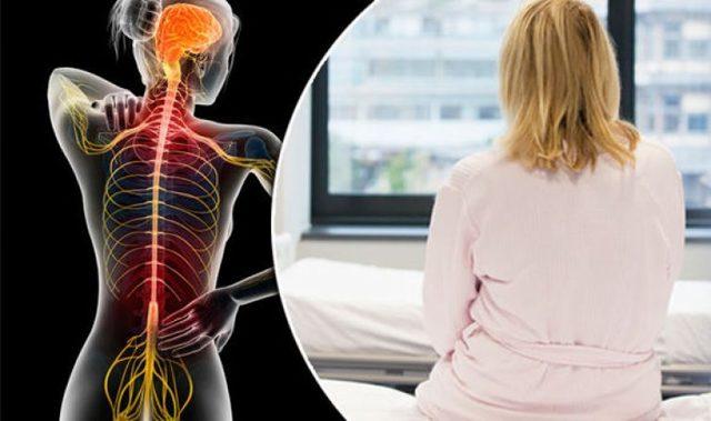 Болезнь Бехтерева: симптомы, лечение, диагностика, прогноз