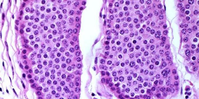 Стадии рака легких, прогноз рака легких 1,2,3 и 4 стадии