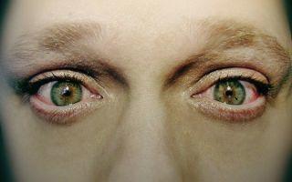 Жжение в глазах: причины, лечение жжения и покраснения глаз