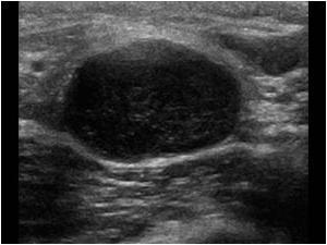 Воспаление лимфоузлов в паху у женщин: причины, лечение. Где находится лимфоузел в паху фото