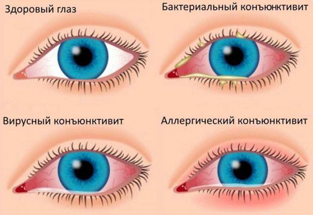 Дорзопт глазные капли: инструкция по применению, цена, отзывы, аналоги