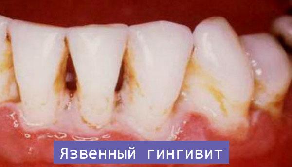 Язвенно-некротический гингивит (гингивит Венсана): симптомы, лечение