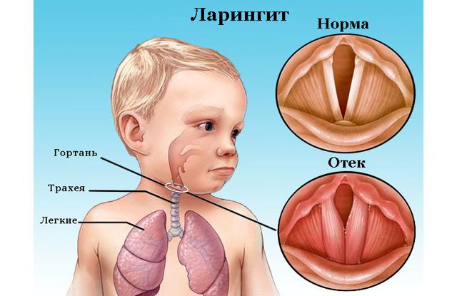 Ларингит у детей: симптомы, лечение, как лечить ларингит в домашних условиях