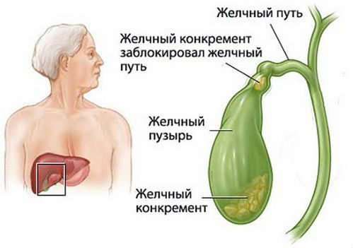 Холецистит: симптомы, признаки, лечение. Как лечить холецистит