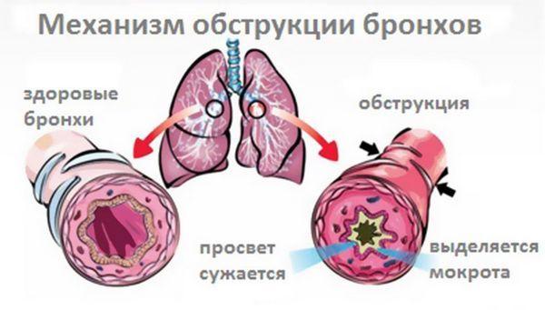 Бронхит симптомы и лечение у взрослых, антибиотик. Бронхит у взрослого без температуры: симптомы, признаки
