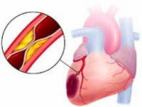 Инфаркт миокарда: симптомы, первые признаки, лечение, последствия инфаркта