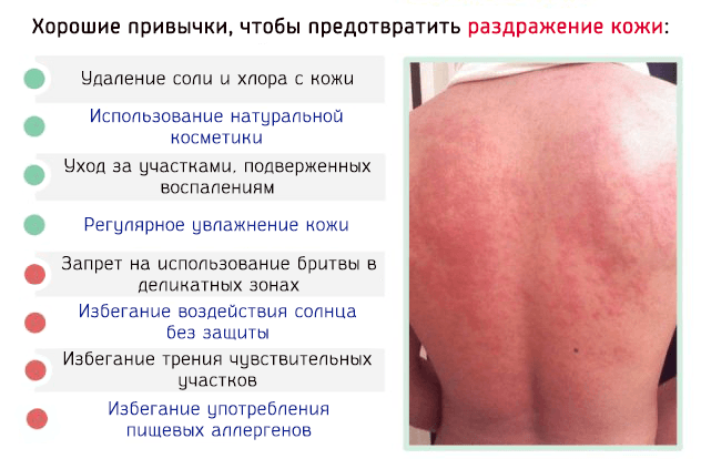 Раздражение на коже, чешется, покраснение - чем лечить, фото
