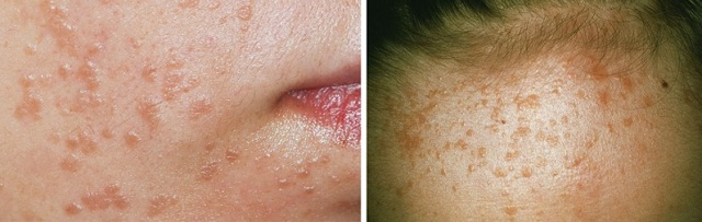 Бородавки на лице: фото, лечение плоских бородавок на лице