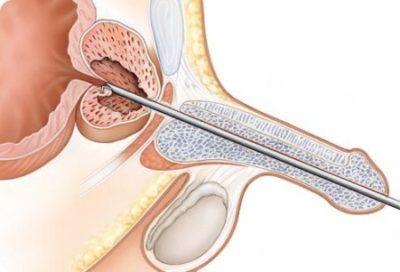 Баланопостит: фото, симптомы и лечение баланопостита у мужчин