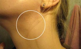 Мононуклеоз: симптомы и лечение инфекционного мононуклеоза у взрослых, фото, что это за болезнь