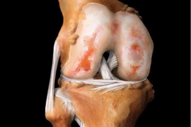Артрит коленного сустава - симптомы и лечение, к какому врачу обращаться при артрите