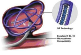 Аневризма сосудов головного мозга: симптомы, лечение, операция