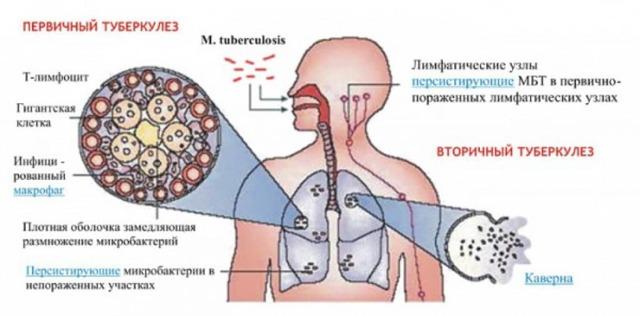 Туберкулез: симптомы, первые признаки у взрослых, лечение, профилактика туберкулеза легких