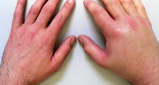 Отек Квинке: симптомы и лечение, фото
