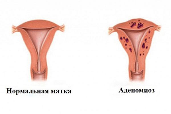 Аденомиоз матки: лечение, беременность при аденомиозе