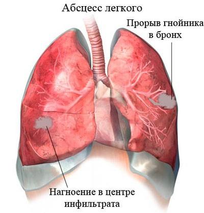 Абсцесс легкого: симптомы, лечение острого и хронического абсцесса легкого
