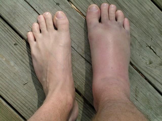 Почему отекают ноги в щиколотках у женщин - 10 причин, лечение
