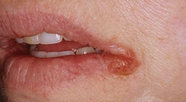 Трещины в уголках губ: причины, лечение