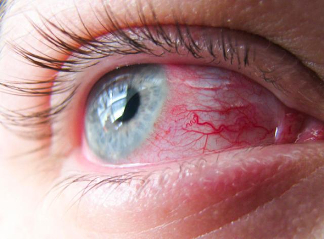 Конъюнктивит: симптомы, фото, лечение конъюнктивита глаз у взрослых