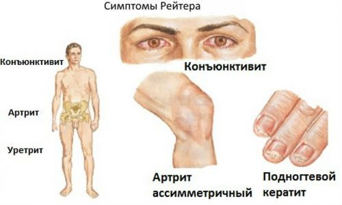 Уретрит: симптомы, лечение, препараты. Как лечить уретрит