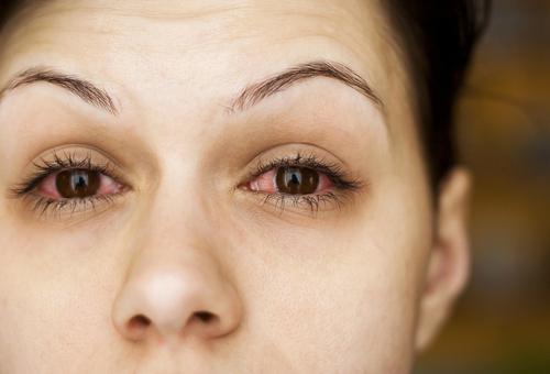 Ципромед глазные капли: инструкция по применению, цена, отзывы, аналоги
