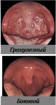 Фарингит: симптомы, фото, лечение фарингита