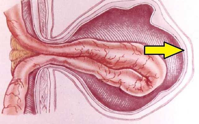 Паховая грыжа у женщин симптомы