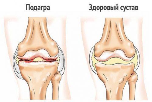 Боль в коленном суставе: причины, лечение. Что делать, если болит коленный сустав