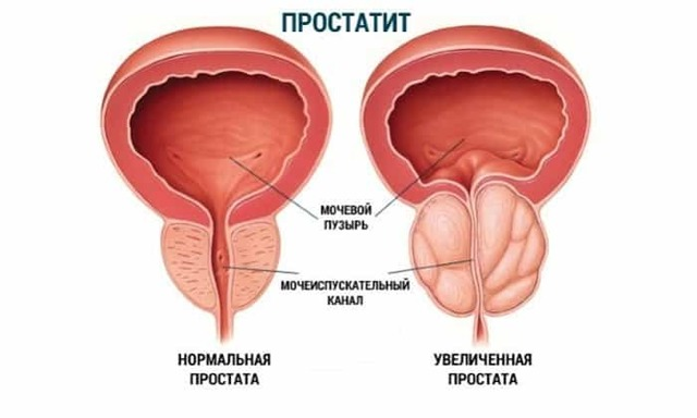 Супракс: инструкция по применению, цена таблеток 400 мг, отзывы, аналоги