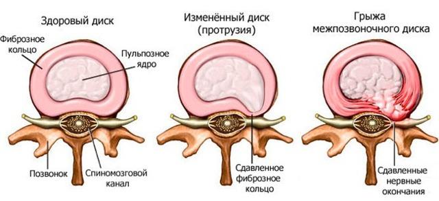 Грыжа грудного отдела позвоночника: симптомы, лечение