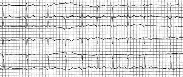 Аритмия сердца: симптомы, лечение. Чем опасна аритмия