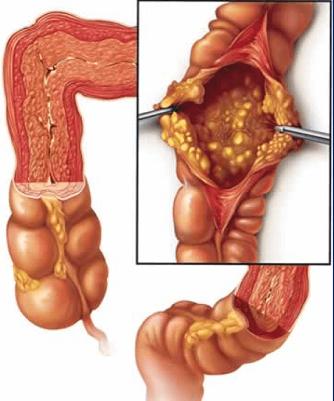 Энтероколит кишечника: симптомы и лечение у взрослых, острый и хронический энтероколит
