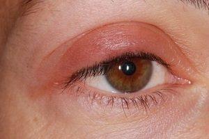 Тафлотан глазные капли: инструкция по применению, цена, отзывы, аналоги