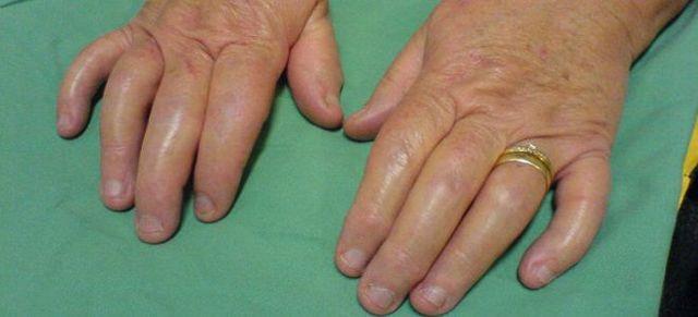 Псориатический артрит: симптомы и лечение, фото