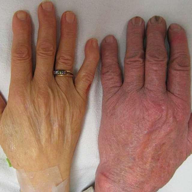 Анемия, симптомы и лечение анемии