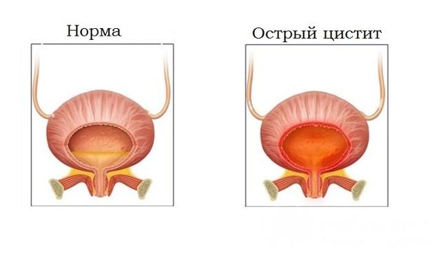 Острый цистит: симптомы, лечение острого цистита у женщин