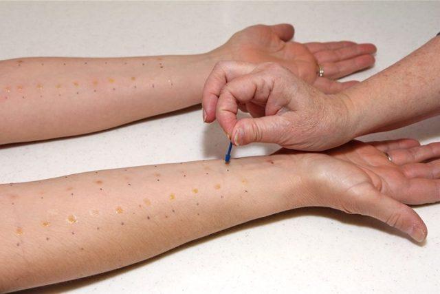 Аллергический дерматит у детей: фото, симптомы, лечение