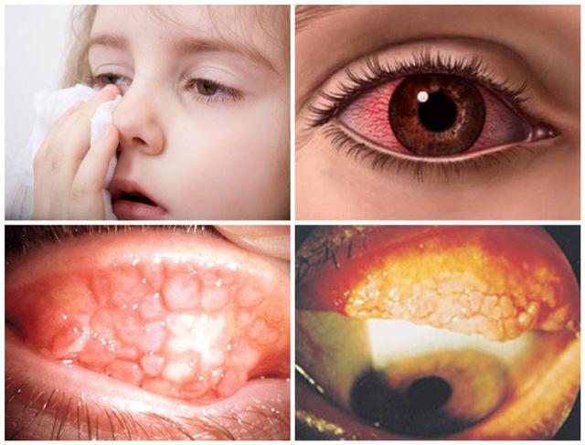 Офтальмоферон глазные капли: инструкция по применению, цена, отзывы, аналоги