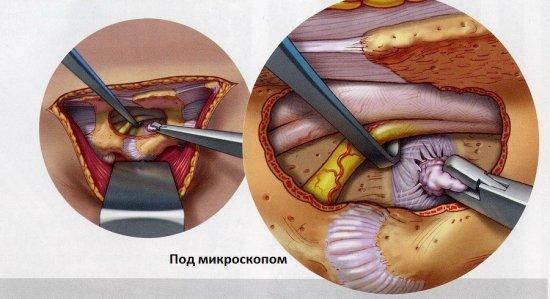 Межпозвоночная грыжа поясничного отдела позвоночника: симптомы, лечение, операция по удалению