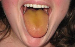 Зеленый налет на языке, причины зеленого налета